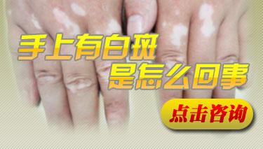 手部的白癜风要怎么护理呢
